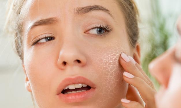 Rimedi per pelle secca? -Scrub- Ecco alcuni rimedi naturali fai da te.
